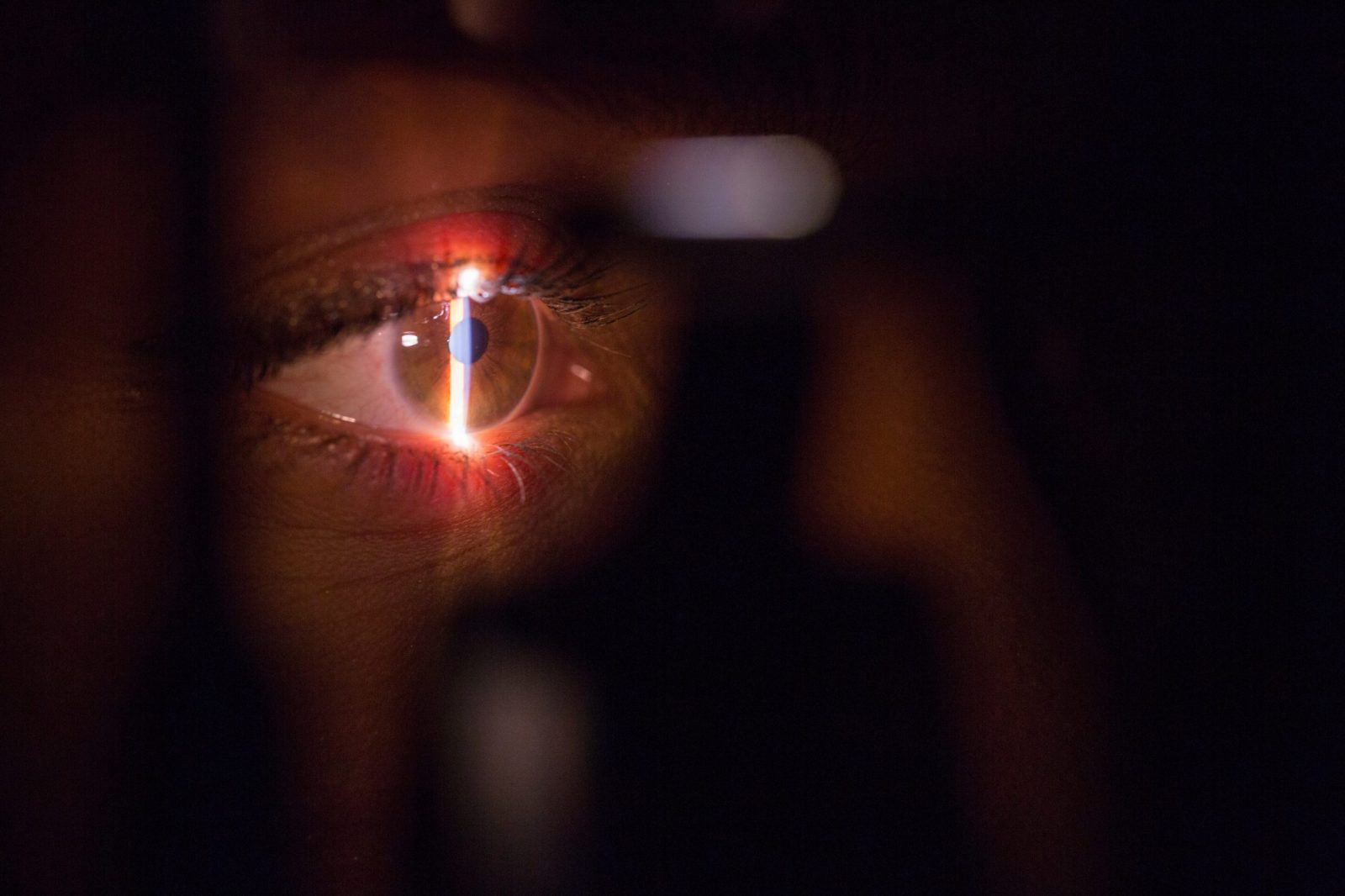 Qué son las lentes multifocales